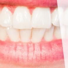 prezzi del dentista