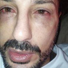 Fabrizio Corona shock, rischia di perdere la vista. Il motivo è da non credere
